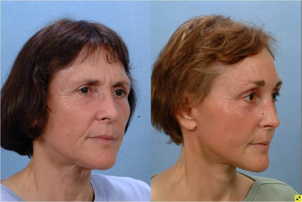Dr. Patrick Byrne Patient - Treatment: facelift, endoscopic browlift and chemical peel to lower lid region.