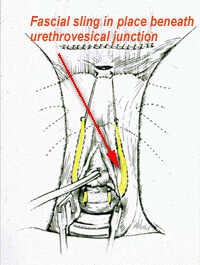 Fascial sling shown in place