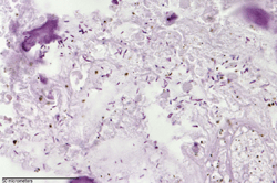 Gram stain of C. novyi-NT germination in a dog tumor