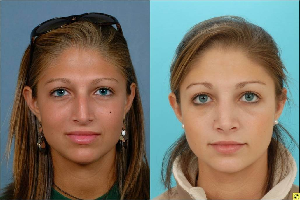 facial reconstruction surgeon in MD