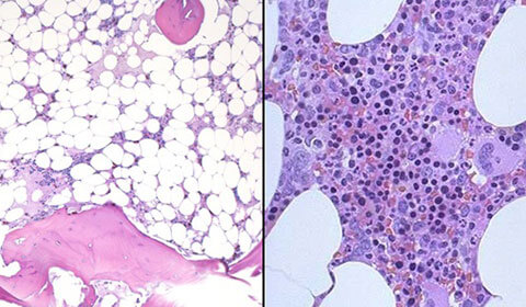 side-by-side comparison of aplastic anemia and normal bone marrow cells.