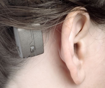 baha hearing device