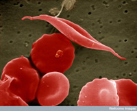 A sickle cell
