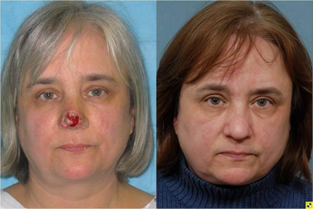 Dr. Patrick Byrne Patient - Treatment: Nasal tip defect treated with a paramedian forehead flap.