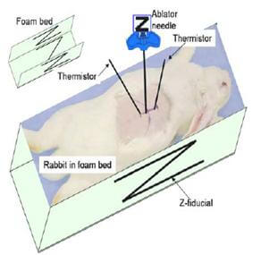 Ultrasonic ablation of vertebral body tumors johns hopkins project overview ccuart Choice Image
