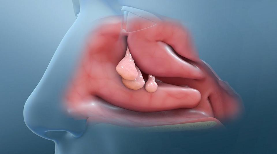Nasal and sinus problem