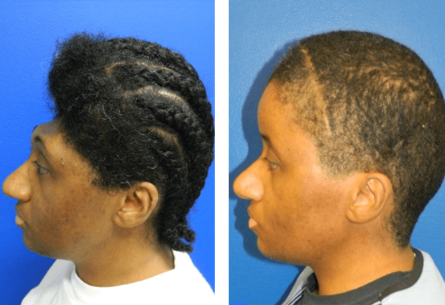 before and after bilateral cranioplasty surgery using a custom implant