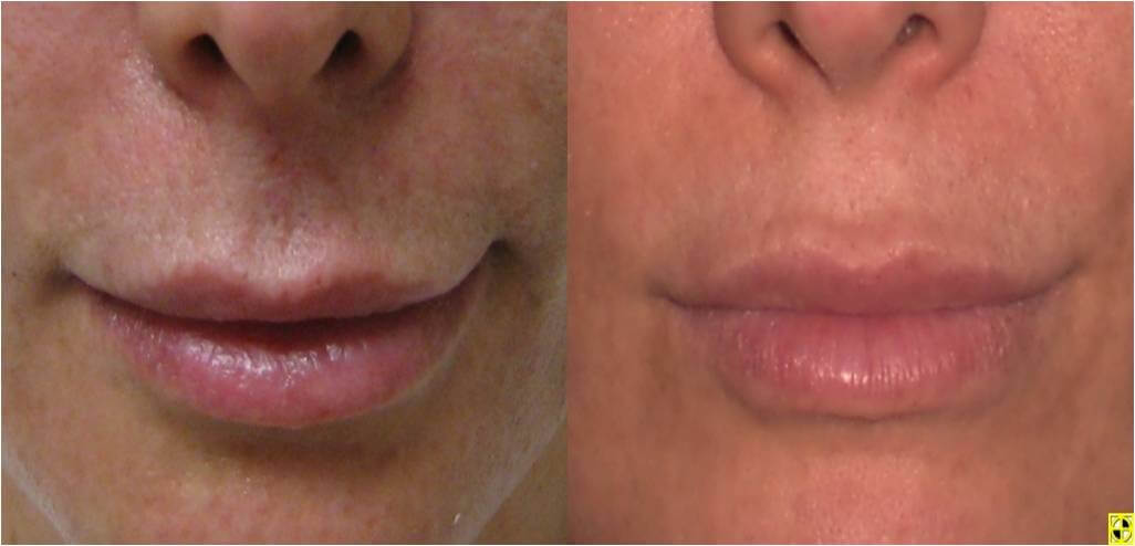 Dr. Patrick Byrne Patient - Volume to lips with Juvederm