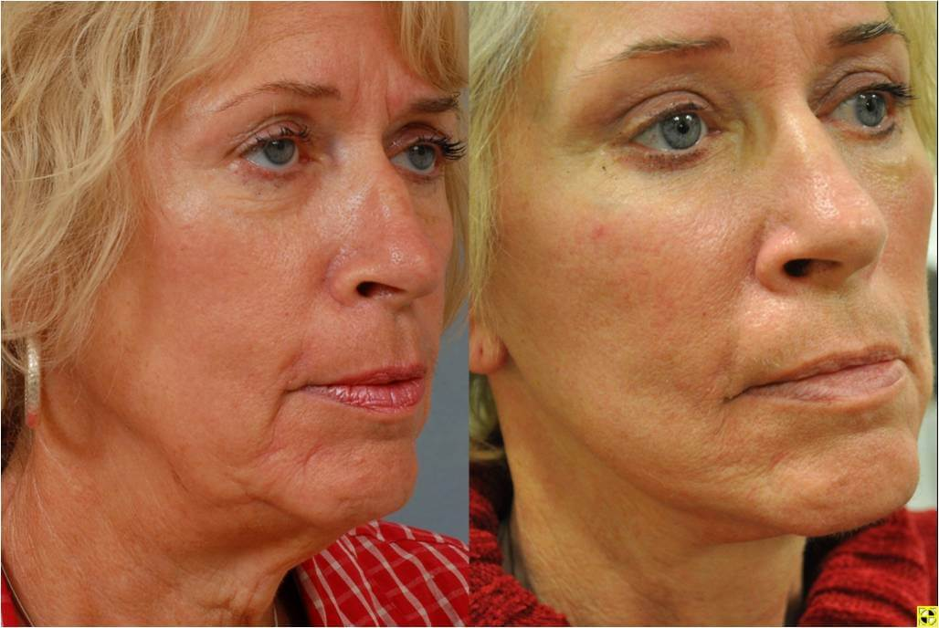 Dr. Patrick Byrne Patient - Treatment: facelift, upper and lower eyelid blepharoplasty, endoscopic browlift, autologous fat injections to malar (cheek) region and rhinoplasty for hump reduction.
