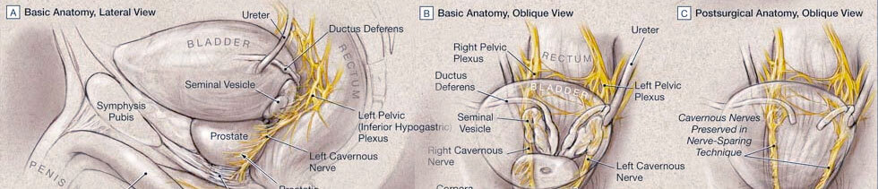 lateral and oblique views of basic urologic anatomy as well as an oblique view of post-surgical anatomy