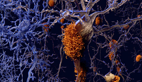 Neuron affected by plaques of Alzheimer's disease.