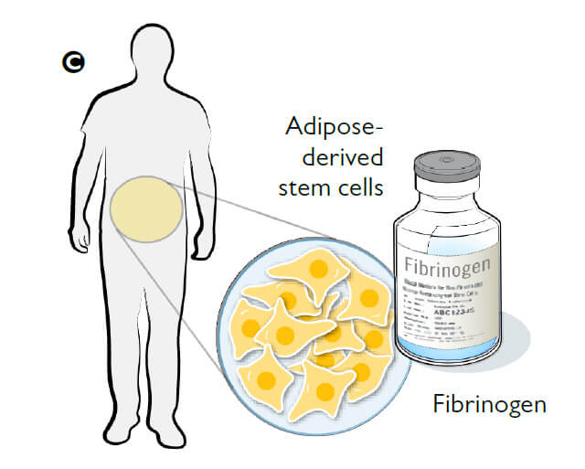 adipose-derived stem cells / firinogen