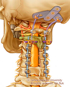 illustration of the upper spine and skull with surgical appliance