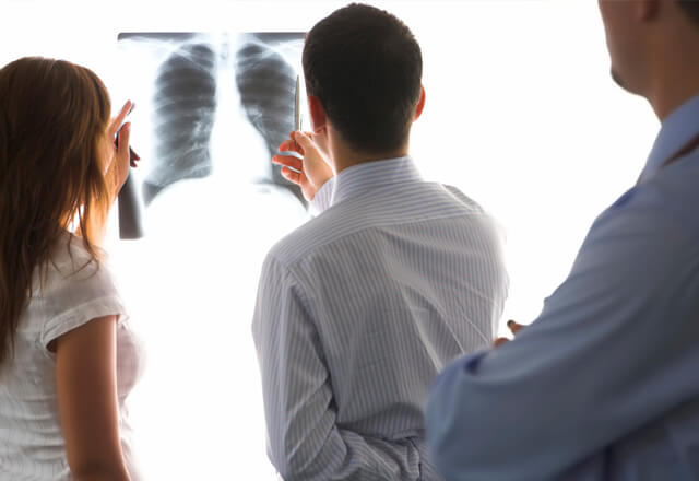 three doctors examine an xray of someone's chest