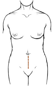 Diagram of lower midline incision, showing a vertical line down the abdomen to the groin