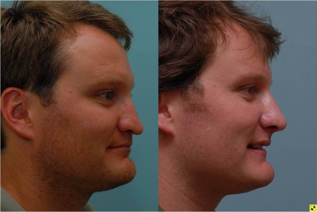 Dr. Patrick Byrne Patient - Diagnosis: multiple previous rhinoplasty surgeries resulting in a nasal deformity and nasal obstruction.  Treatment: revision rhinoplasty with rib cartilage grafting.