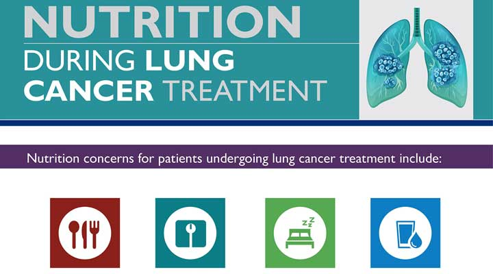 Nutrition During Lung Cancer Treatment: Infographic