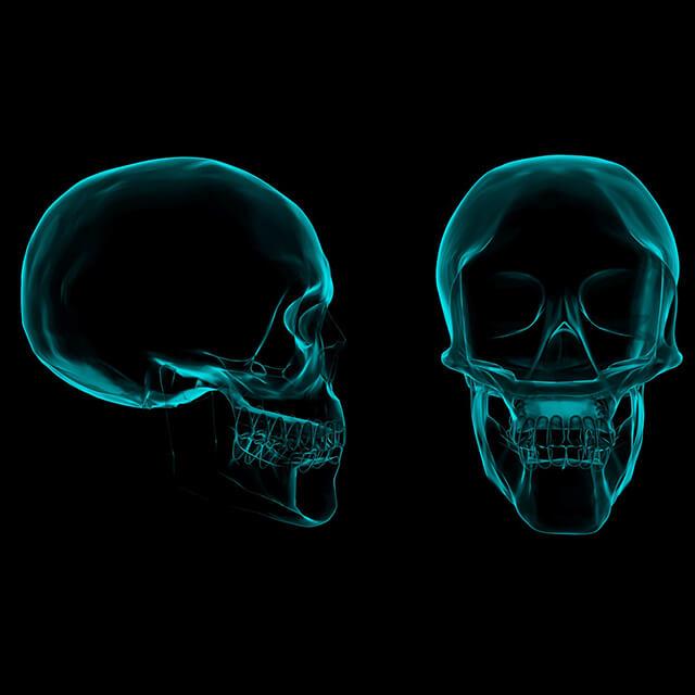 Diagram of a human skull