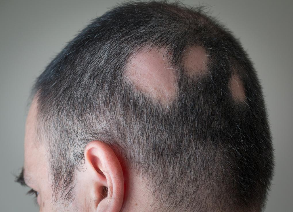 Experimental Drug Reverses Hair Loss and Skin Damage Linked
