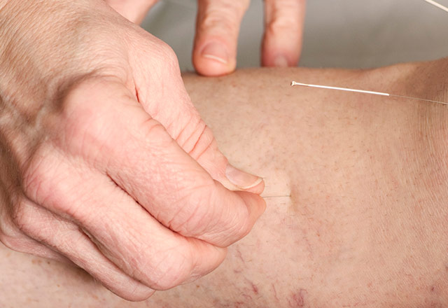 Acupuncture needle inserted into a shoulder