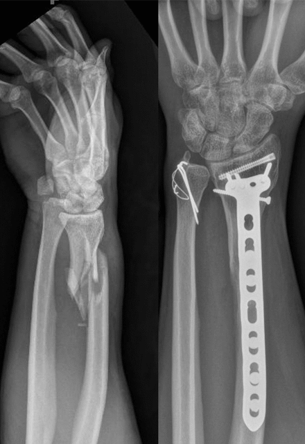imaging of an arm repaired with a metal piece