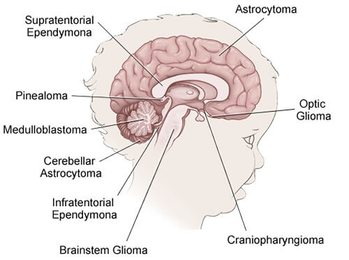 types of pediatric brain tumors