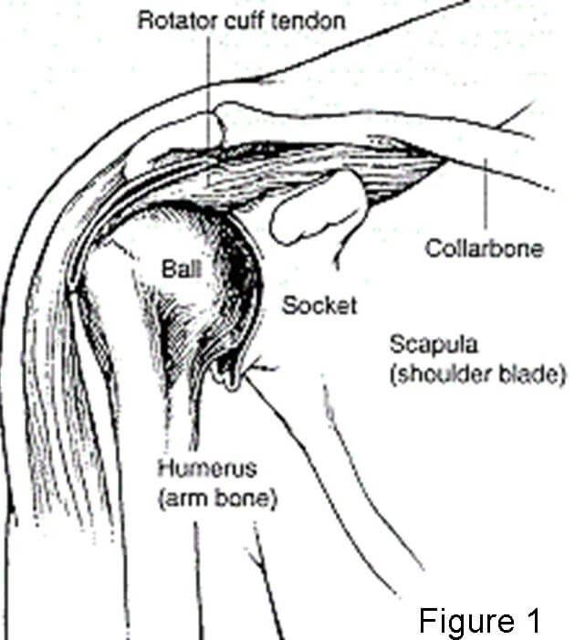 Reverse Total Shoulder Replacement | Johns Hopkins Department of ...