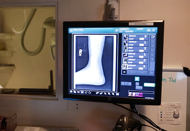 ankle scan