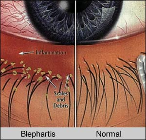 blepharitis illustration