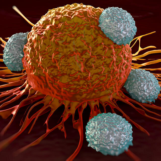 Immune cells attacking a bright orange cancer cell