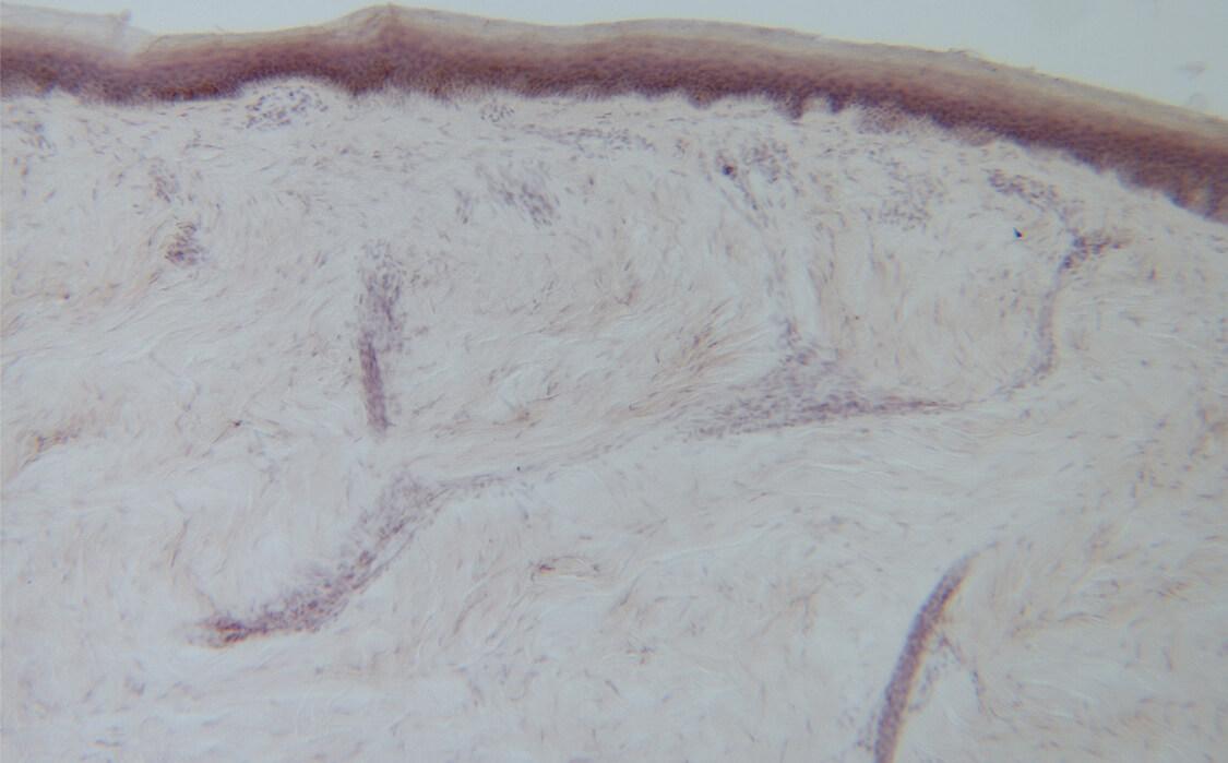 Biopsy, Skin Biopsy