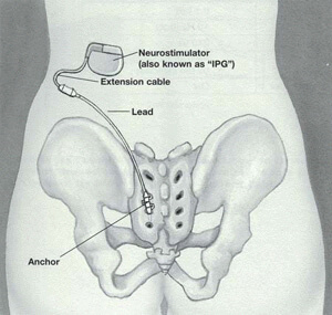 Neurostimulator positioned in the abdomen and leading down to the sacrum