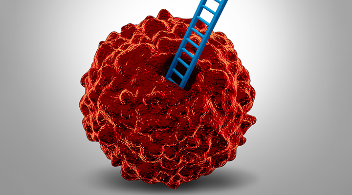 Prostate Cancer Cells on the Move: But Why?