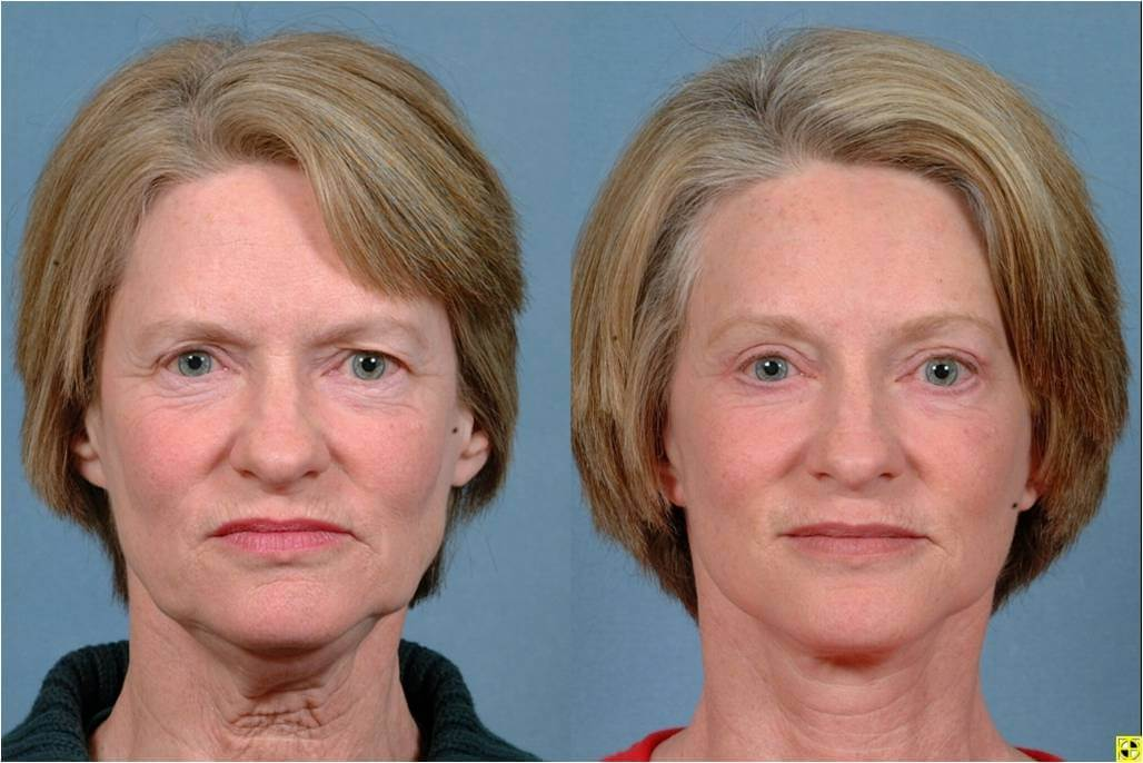 Dr. Patrick Byrne Patient - Treatment: facelift, neck liposuction, upper and lower eyelid blepharoplasty, endoscopic browlift, and minimally invasive injections to perioral (tissues around the mouth) region.
