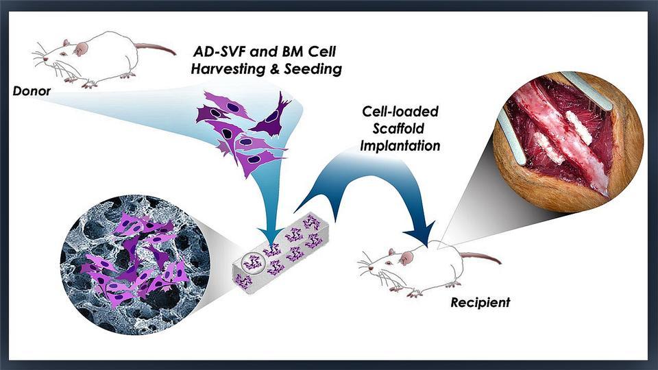 Adipose cells