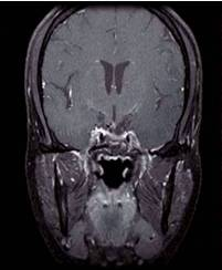 Pituitary macroadenoma after surgery (front view)