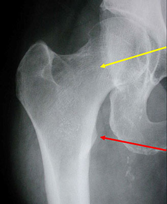 AP radiograph with leg in internal rotation