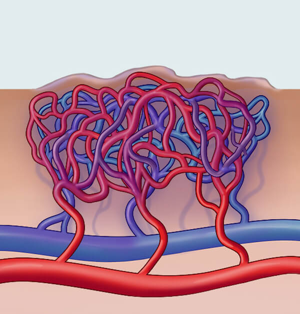 Diagram of the blood vessels and veins beneath an arteriovenous malformation