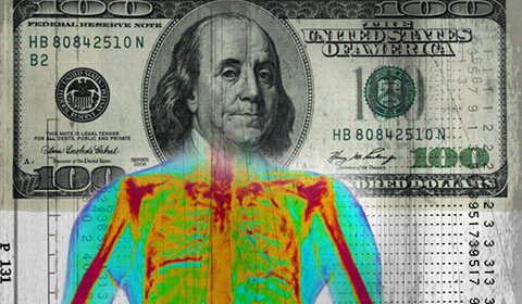 Hundred dollar bill superimposed across an X-ray.