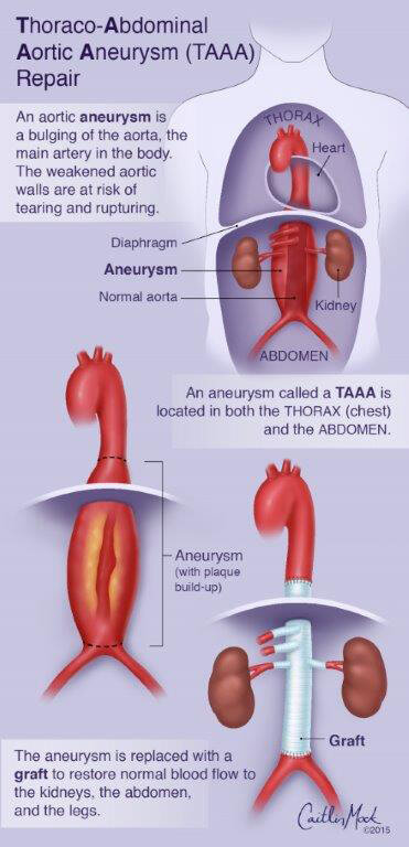 abdominal aortic aneurysm johns hopkins medicine health diagram of aaa