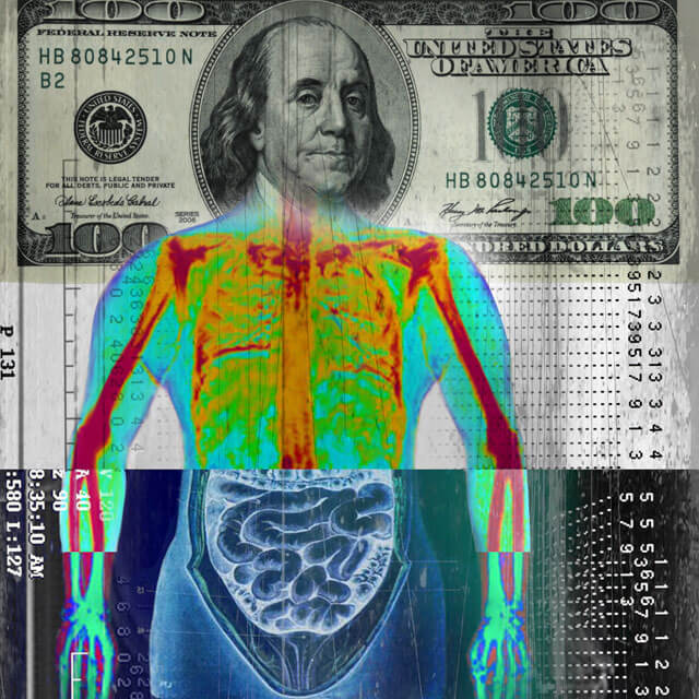 Artist's illustration combines radiological images with a $100 bill.