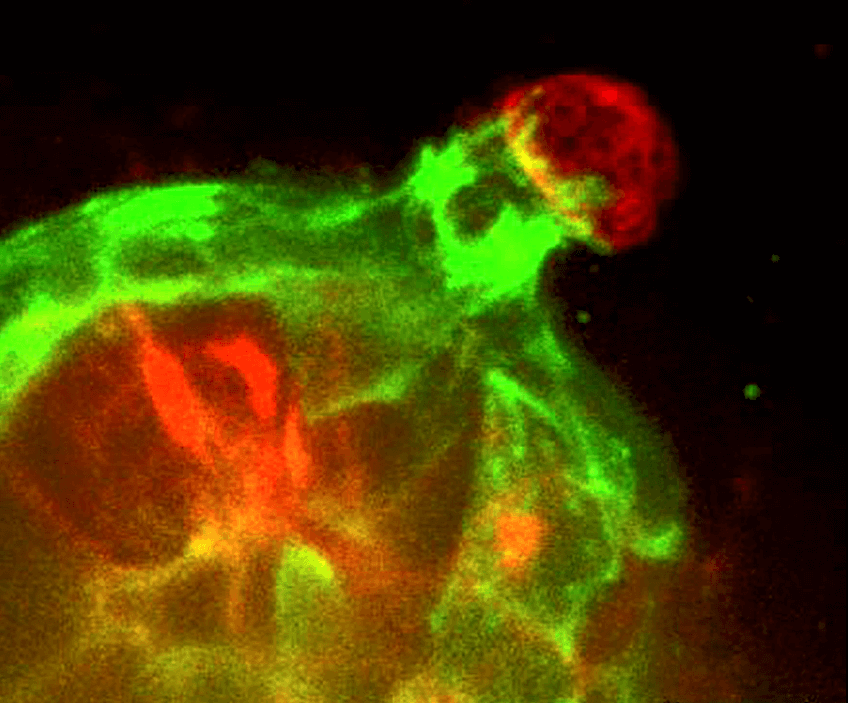 Imaginbg of Twist1-expressing epithelial cells (red) and normal myoepithelial cells (green).