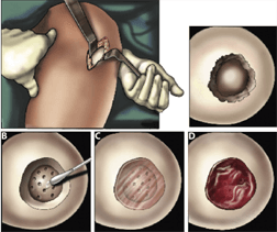 Tissue Engineers Report Knee Cartilage Repair Success With