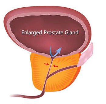 Diagram of an enlarged prostate gland, showing the prostate gland compressing the urethra and blocking the flow of urine from the bladder