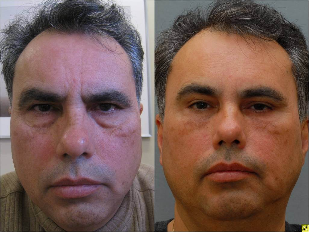 an account of my successful blepharoplasty eyelid surgery Learn about eyelid surgery (blepharoplasty) surgery cost, recovery time, complications, and risks blepharoplasty removes skin and either adds or removes eyelid fat.