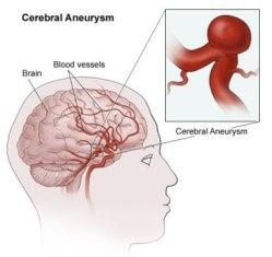 brain aneurysms | johns hopkins cerebrovascular center, Cephalic Vein