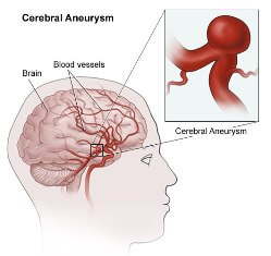 types of aneurysms | johns hopkins aneurysm center, Human Body