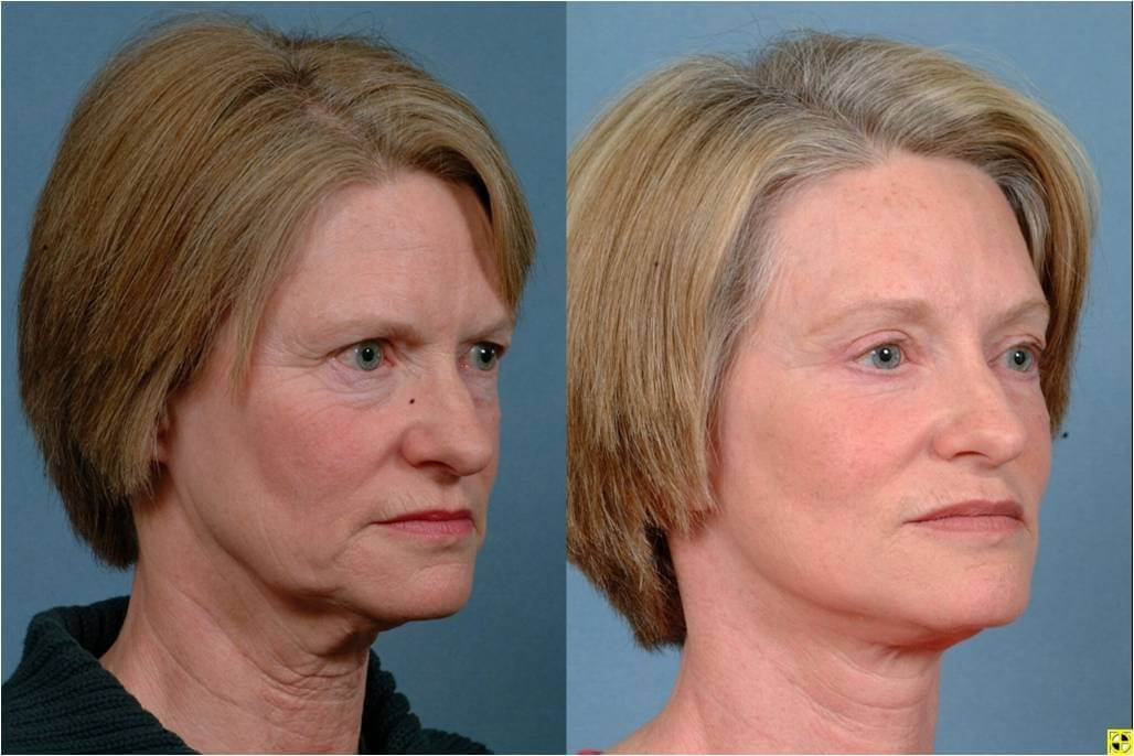 Dr. Patrick Byrne Patient -Treatment: facelift, neck liposuction, upper and lower eyelid blepharoplasty, endoscopic browlift, and minimally invasive injections to perioral (tissues around the mouth) region.
