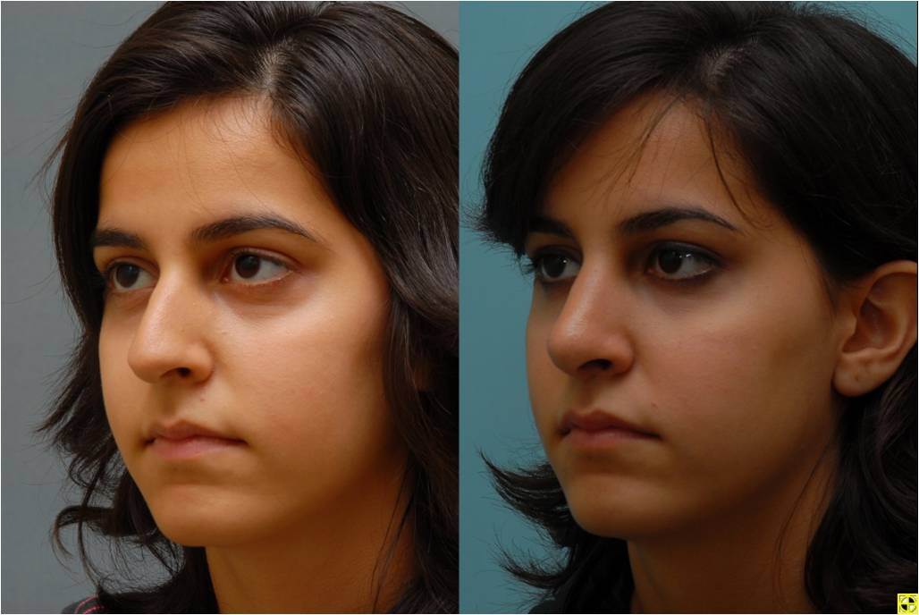 Dr. Patrick Byrne Patient - Treatment: rhinoplasty with dorsal hump reduction.