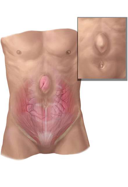 Conditions We Treat: Ventral (Abdominal) Hernia | Johns